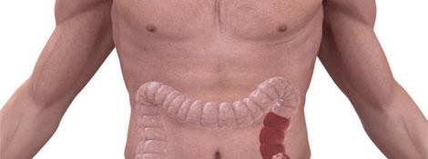 La Generalitat es queda el programa de detecció del càncer de còlon