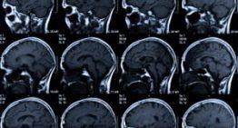 L'ictus és el principal motiu d'ingrés neurològic als hospitals de la Corporació de Salut del Maresme i la Selva